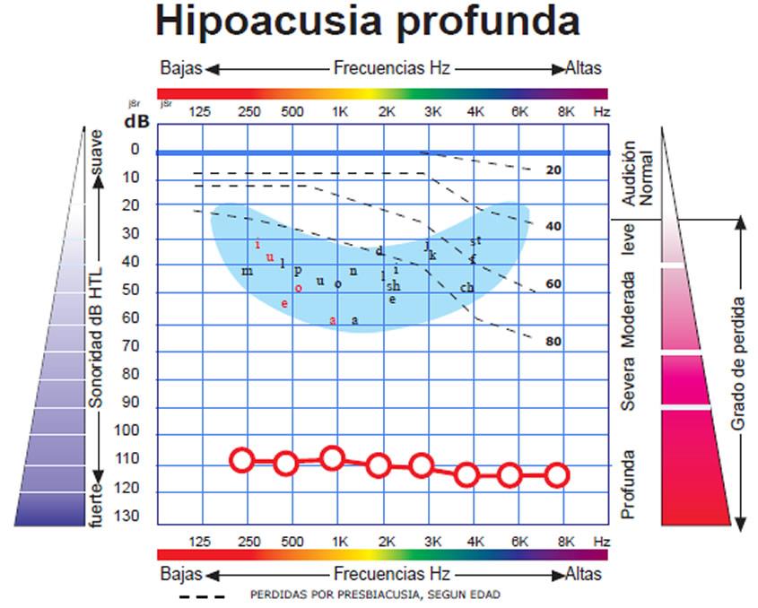 hipoacusia_profunda_zoom